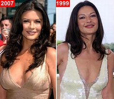 Catherine Zeta-Jones herself either denies or agrees the rumor she has had plastic surgery procedure. But even the rumor plastic surgery probably true, Catherine Zeta-Jones seems got so much advantages from it. Plastic Surgery Before After, Plastic Surgery Gone Wrong, Plastic Surgery Photos, Catherine Zeta Jones, Celebrities Before And After, Celebrities Then And Now, Adrienne Bailon, Celebrity Plastic Surgery, No Photoshop