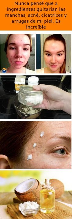 Nunca pensé que 2 ingredientes quitarían las manchas, acné, cicatrices y arrugas de mi piel. Diy Hair Treatment, Acne Treatment, Skin Treatments, Beauty Care, Beauty Skin, Beauty Secrets, Beauty Hacks, Hair Care Recipes, Wrinkle Remover