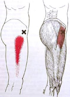 tensor fascia lata trigger point (the cause of my knee pain, according to my trainer) Qi Gong, Massage Tips, Massage Benefits, Massage Therapy, Fascia Lata, Hip Flexor Pain, Hip Pain, Hip Flexors, Knee Pain