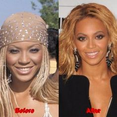 Beyonce Plastic Surgery Beyonc Plastic Surgery Did The Singer Lighten Her Skin Beyonce Plastic Surgery Lighter Skin And Bigger Breasts Beyonce Plastic Surgery