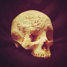 malformalady:  A skull affected by Sarcoma Cranii, an Aggressive Type of Bone Cancer. The rough, crystalline surface of the frontal and zygomatic bones is the product of the ossification of the lesionPhoto credit: annika.nor