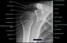 - Pectoral girdle; Shoulder girdle