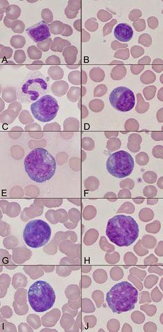 Lymphocytes Variation