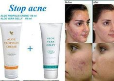 Resultado de imagem para forever living products before and after Forever Aloe, Forever Living Aloe Vera, Crème Aloe Vera, Aloe Vera For Skin, How To Remove Pimples, How To Get Rid Of Acne, Forever Living Products, Acne Cream, Skin Care