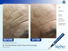 More amazing results with SkinPen! Seeing is definitely believing.