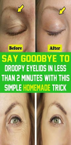 Drooping eyelids are usually the result of aging. However, many other factors can affect their appearance. Once they occur, droopy eyelids may remain the same, can worsen over time or simply come and go. Natural Home Remedies, Herbal Remedies, Health Remedies, Health And Fitness Tips, Health And Beauty, Drooping Eyelids, Self Care Routine, Wellness Tips, Healthy Tips