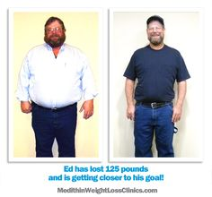 Ed lost 125 pounds with Medithin Weight Loss Clinics.