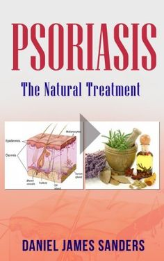 Psoriasis: The Natural Treatment (Psoriasis Cure, Psoriasis Diet, Psoriasis Diet, Psoriasis Free For Life, Healthy) by Daniel James Sanders, http://www.amazon.com/dp/B00I6KTVF6/ref=cm_sw_r_pi_dp_F6oatb099Y8GB