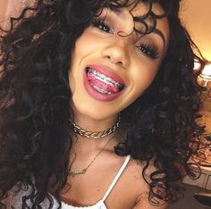 @foreverflawlyss  Be a beautiful & confident braceface ! #BeautifulBraceface #BracefaceGoals !
