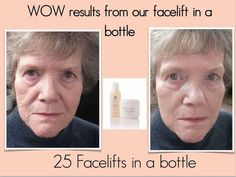 Works immediately to temporarily lift, firm, and tone your skin while reducing the appearance of lines and wrinkles. Facelift In A Bottle, Busy At Work, Ageless Beauty, Healthy Skin Care, I Site, Skin Treatments, Anti Aging Skin Care, Nu Skin, Acting