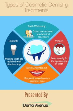 Cosmetic dentistry has been gaining popularity among the masses. There are different types of treatments available to have a beautiful smile. All the various are listed one by one in this Infographic. Miniature Dental Care Tips People Dental Hygiene, Dental Health, Oral Health, Dental Care, Dental Assistant, Dental Posters, Teeth Straightening, Emergency Dentist, Dental Facts