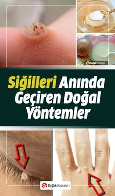 Siğillerin çıkmasını sonsuza dek durdurmanıza yardımcı olacak en iyi do… We've put together the best natural ways to help stop warts from growing out forever. Here are the natural ways to get rid of warts… Natural Health Remedies, Herbal Remedies, Home Remedies, Gut Health, Health And Wellness, Health Fitness, Get Rid Of Warts, Have A Good Sleep, Yoga Posen