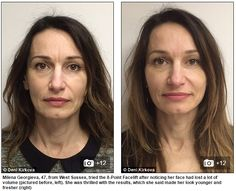 8-point fillers facelift before and after results