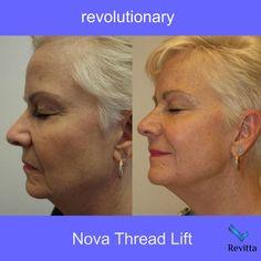 NovaThreads non-surgical face tightening & lifting  Revitta #Manhattan   212.535.1201   #pdolift #threadlift #facelift #necklift #face #beauty #cosmetic #newyork #neck #skin #newyorker #pdothreads #skintightening #newcosmetic #look #rejuvenate #woman #girl #cool #newyorkcity #lookgood #beautiful #gorgeous #novathreads #newyorkbeauty #newyorkstyle  #beautytreatment #newbeauty  #plasticsurgery #cosmeticsurgery #plasticsurgeon #antiaging #facialplasticsurgeon Thread Lift, Face Tightening, Facial Aesthetics, Neck Lift, New York Beauty, New Cosmetics, Cosmetic Procedures, Plastic Surgery, Self Improvement