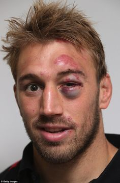 England captain Chris Robshaw was left with a nasty black eye after Saturday's clash with the All Blacks. But how does his injury compare to these other sporting shiners? Male Makeup, Sfx Makeup, Prosthetic Makeup, Special Makeup, Special Effects Makeup, Bruises Makeup, Bruised Eye, Chris Robshaw, Cuts And Bruises