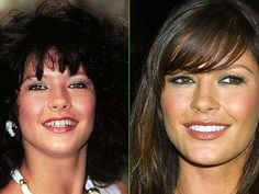 Celebrities That Have Had Cosmetic Dentistry - Pictures Before and After