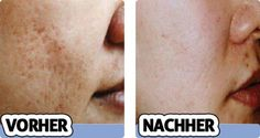 Entfernen Akne-Narben für immer