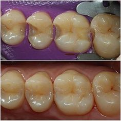 It's not about perfect it's about effort! But effort can lead to pretty awesome results at times! Happy Dental, Dental Life, Smile Dental, Free Dental, Dental Art, Dental Aesthetics, Dental Technician, Restorative Dentistry, Dental Cosmetics