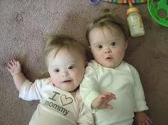 twins with Down Syndrome