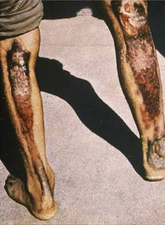 Third-degree localized burns of skin exposed at about one mile from ground zero. Benedict, Carrie and Loretta are extremely scared that the the leg has a skull-looking burn.