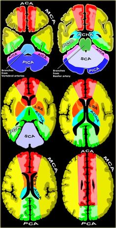Brain Ischemia - Vascular Territories Clinical viewing of radiological results of vascular insults. Good primer for learning the irrigation territories.