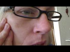 ▶ Silent Superbug Fiber Disease Morgellons Deep in Face - YouTube