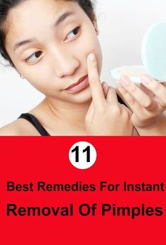 Acne Remedies For those whose pimples are robbing of their peace of mind, here are few simple effective tips to remove pimples instantly. - For those whose pimples are robbing of their peace of mind, here are few simple effective tips to remove pimples Natural Remedies For Sunburn, Skin Tags Home Remedies, Sunburn Remedies, Home Remedies For Pimples, Cellulite Remedies, Skincare For Combination Skin, Lotion, Pimples On Forehead, Pimples Under The Skin