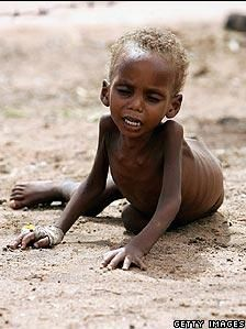 Somalia...let us do something about this.... No child deserves to suffer like this... it's up to us.