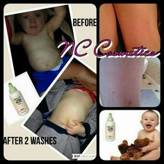 👶Being a mother myself it's horrible to see your child suffering with eczema the itchiness and sorness that goes with it too. 👶  After two washes this little boys eczema had the itchiness down and the redness. (See pictures)   Not only for skin but for hair, also its great for cradle cap too.   This gentle, effective product offers time-proven solution for your baby's skin care needs.  Epoch® Baby Hibiscus Hair and Body Wash contains hibiscus flower extracts.  Order yours now 💋👇 Cradle Cap, Baby Skin Care, Epoch, Hibiscus Flowers, Product Offering, Body Wash, Your Child, Little Boys, Children