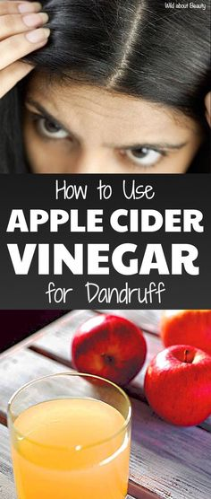 How to Use Apple Cider Vinegar for Dandruff Dandruff is one of the most irritating hair problems. Read moreHow to Use Apple Cider Vinegar for Dandruff Home Remedies For Dandruff, Natural Cough Remedies, Natural Cures, Herbal Remedies, Health Remedies, Natural Health, Natural Hair, Wild About Beauty, Vinegar For Hair