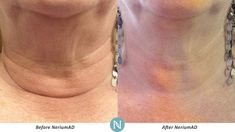 A picture is worth a thousand words. These Real Results with #NeriumAD are amazing!http://nerium.com/mainlyretrobeauty/