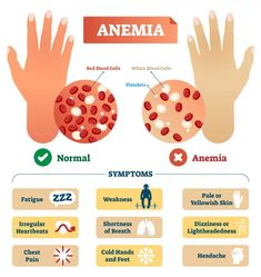 Causes Of Anemia, Anemia Symptoms, Hypothyroidism, Health Facts, Health And Nutrition, Health Quotes, Health Diet, Food For Anemia, Anemia Diet