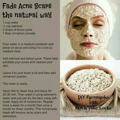 Facepack to get rid of acne marks.