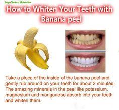 teeth whitening with banana peel instead of the harsh acid of lemon juice