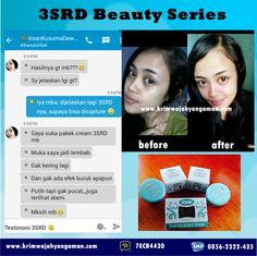 Testimoni 3SRD Beauty Series