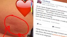 'Something wasn't right': Woman's photo of 'dimpled' breast goes viral