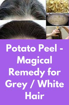 White Hair to Black Permanently in 7 Days with Potato Peel Magical Remedy for Grey / White Hair Natural Black Hair Dye, Black And Grey Hair, Grey And White, Natural Hair Styles, Darken Hair Naturally, How To Darken Hair, Peeling Potatoes, Grow Hair, Hair Today