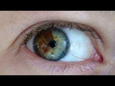 Know anyone with two different colored eyes? The condition is called heterochromia. Learn more on this Moment of Science. Pretty Eyes, Cool Eyes, Beautiful Eyes, Beautiful People, Heterochromia Eyes, Rare Eye Colors, Eyes Closed, Rare Eyes, Change Your Eye Color