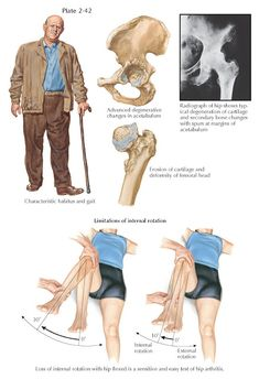 HIP JOINT INVOLVEMENT IN OSTEOARTHRITIS Hip Pain, Back Pain, Avascular Necrosis, Activities Of Daily Living, Musculoskeletal System, Physical Therapy, Physical Therapist