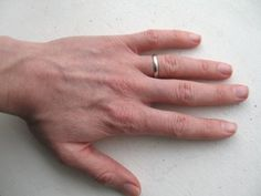 Home Remedies For Dry Hands - Natural Treatments, Cure For Dry Hands | Search Home Remedy