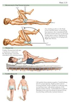 PHYSICAL EXAMINATION Greater Trochanter, Muscle Belly, Referred Pain, Musculoskeletal System, Gluteus Medius, Low Back Pain, Physics, Physique