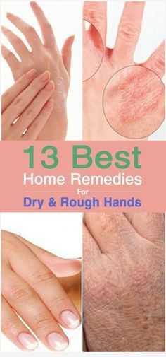 Psoriasis Free - 13 Best For Dry And Rough Hands - Professors Predicted I Would Die With Psoriasis. But Contrarily to their Prediction, I Cured Psoriasis Easily, Permanently & In Just 3 Days. Dry Hands Remedy, Dry Skin Remedies, Natural Remedies, Foot Remedies, Beauty Care, Beauty Hacks, Beauty Advice, Diy Beauty, Beauty Solutions