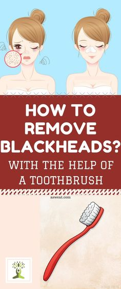There are of people around the world who are suffering from a skin condition called blackheads. They are specific type of dark acne lesion, and are called like that because they contain melanin, which is the pigment that is made by skin cells melanocytes. CAUSES OF THE APPEARANCE OF BLACKHEADS: The sebaceous gland produces excessive …