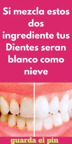 Si mezcla estos dos ingrediente tus Dientes seran blanco como nieve - Woman To Power #dientes #salud #remedios #caseros #blanquear Health And Wellness Quotes, Wellness Tips, Health And Nutrition, Natural Beauty Tips, Natural Cures, Natural Skin, Dental Care, Skin Care Tips, Body Care