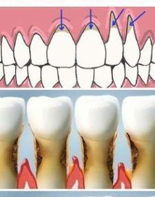 Heavy Weight Life | Grow Back Your Receding Gums With These Natural Remedies!