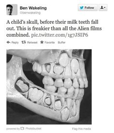 Still with us? Ever think about how your teeth looked in your skull when you were a kid? | Trypophobia Is A Real, Terrifying Thing, And You Definitely Have It