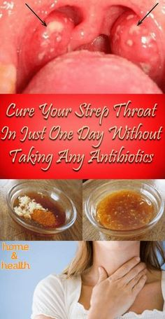 Dealing with Streptococcus pyogenes bacteria can be super tricky, and most people end up with severe complications.