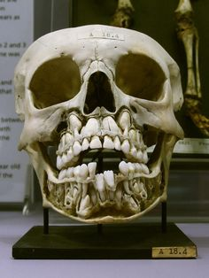 ever since i was a teen i was creeped out by baby teeth. i was good since being a dady until i came a cross this skull with-adult-teeth-preparing-to-change-the-baby-teeth