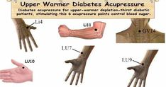 Diabetes acupressure for upper-warmer depletion-thirst diabetic patients, stimulating specific acupressure points help to control blood glucose level. #Acupressure