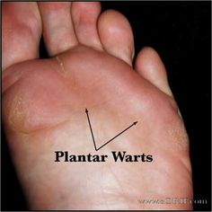 wart stages